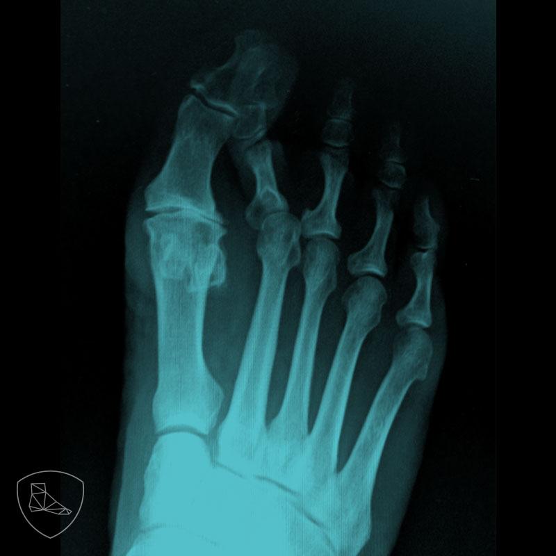 Proyección radiológica posteroanterior en paciente con segundo dedo en martillo y subluxación de la segunda articulación MTF