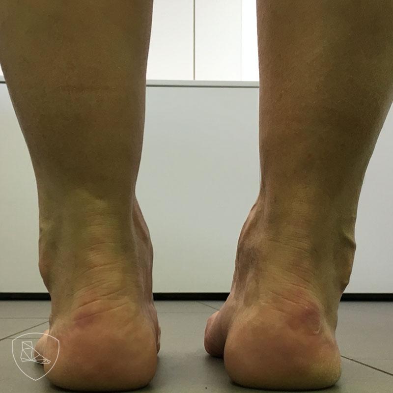 Pie cavo varo como responsable de lesión de los tendones peroneos.