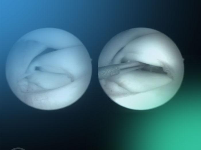 ¿Qué sabes acerca de la patología meniscal en la rodilla pediátrica?
