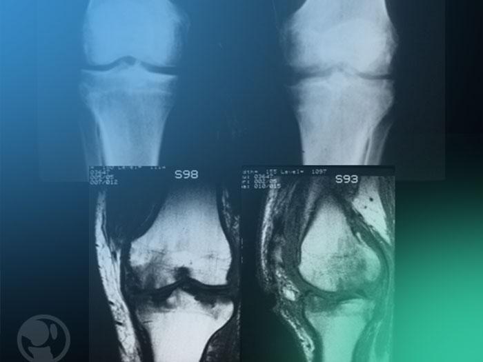 Descubre el diagnóstico de la artritis séptica y conducta a seguir