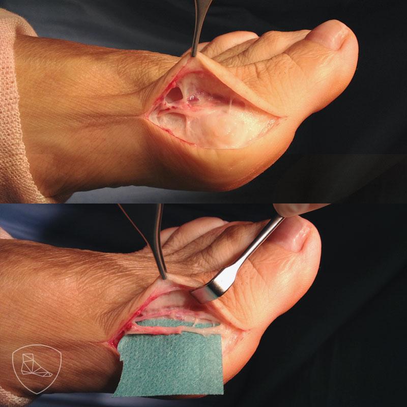 Dorsal a la incisión y extracapsular, se puede observar el nerviocutáneo dorsal medial.