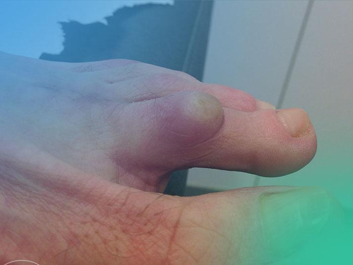 Paso a paso de la exploración física en la Patología de los dedos menores