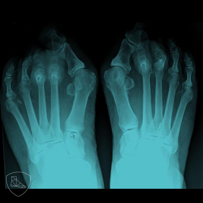 Proyección radiológica posteroanterior en paciente con dedos en garra con luxación completa de la segunda y tercera articulación MTF y subluxación de la cuarta y quinta articulación MTF