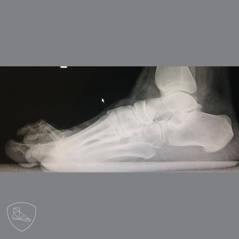 Proyección radiológica perfil en paciente con dedos en garra con luxación completa de la segunda y tercera articulación MTF y subluxación de la cuarta y quinta articulación MTF.