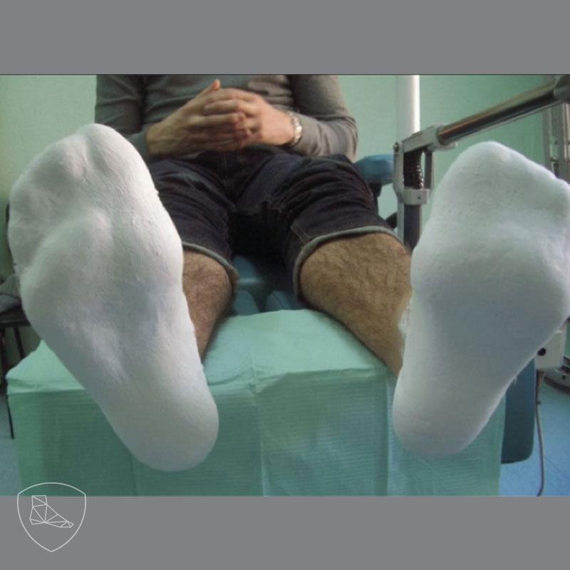 Realización del molde plantar en descarga, importante mantener el ángulo de la marcha del paciente.