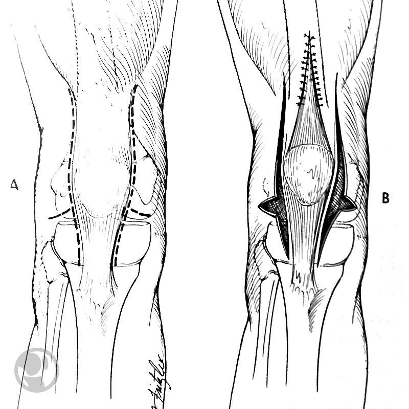 Cuadriceplastia según técnica de Curtis.