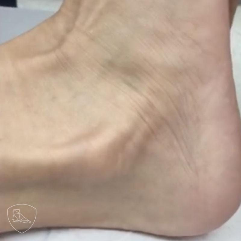 Luxación de los tendones peroneos.