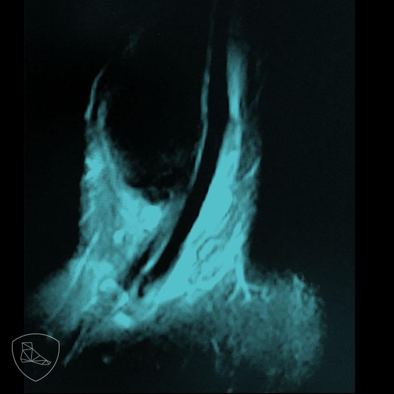 Edema alrededor del trayecto descendente de los tendones peroneos. .