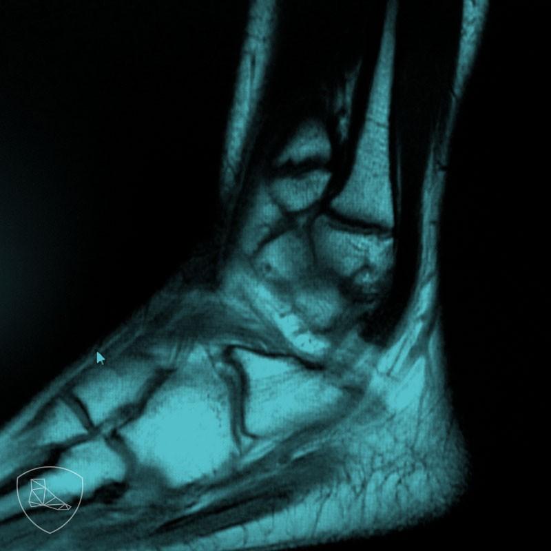 Imagen de RNM peroneus quartus; aumento del espacio que correspondería a los tendones peroneos.