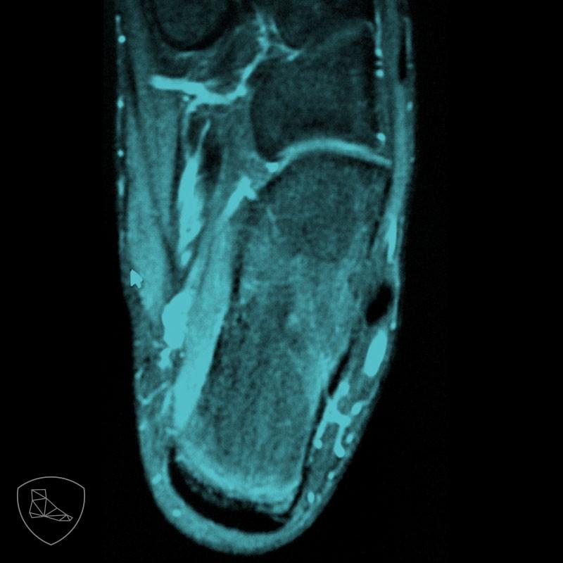 Imagen de RNM peroneus quartus; visón distal.