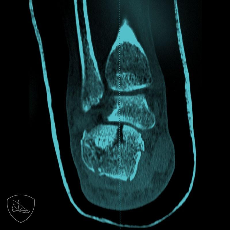 Si tras una fractura de calcáneo no conseguimos una correcta corrección del aumento de diámetro mediolateral se puede producir una compresión en el trayecto de los peroneos con la cara lateral de la tuberosidad posterior del calcaneo.