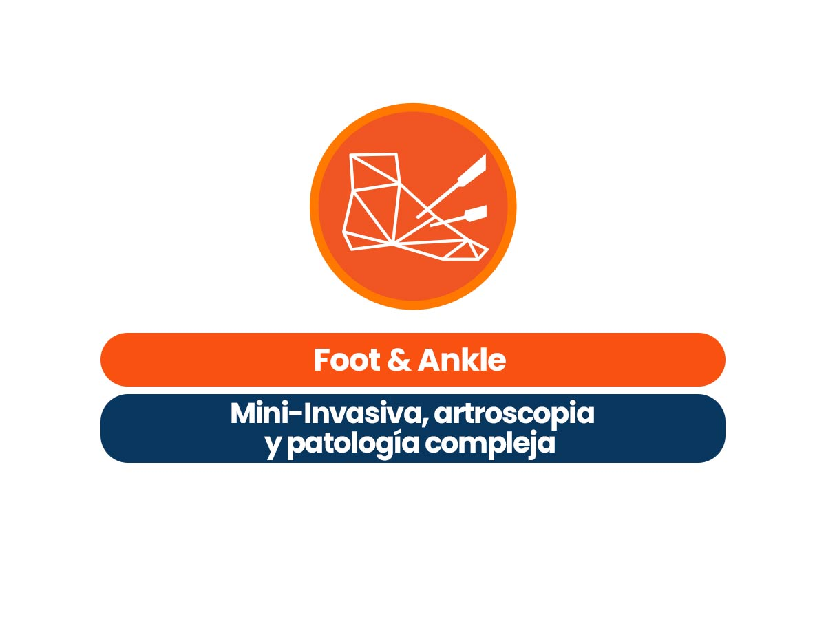 https://aware.doctor/producto/foot-ankle-mis-artroscopia-y-patologia-compleja-cirugia-de-pie-y-tobillo/