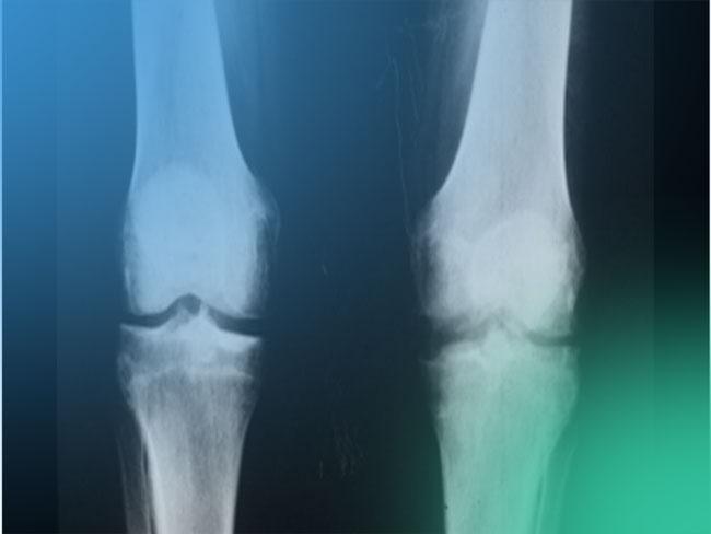 Diagnóstico de la artritis séptica. ¿Qué conducta debes seguir?