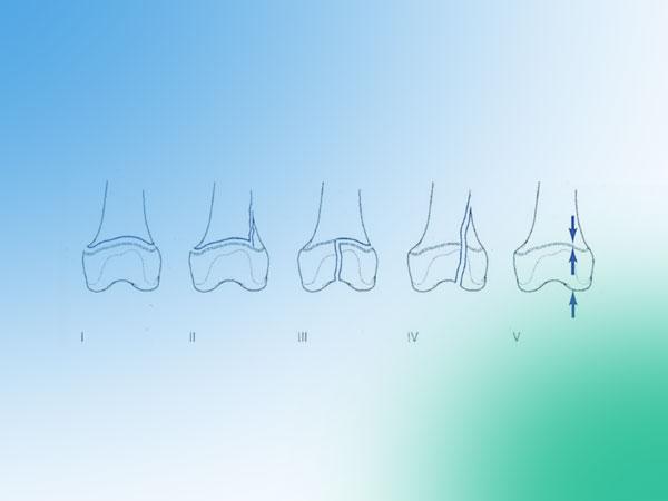Descubre las fracturas fisarias de la rodilla pediátrica