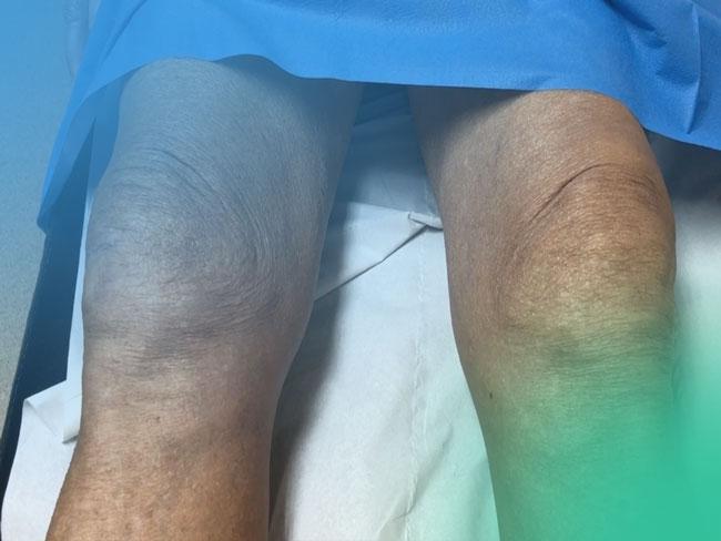 Dolor de rodilla. Aproximación al diagnóstico clínico.
