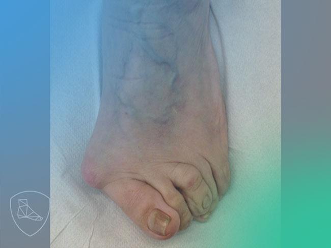 Descubre la patofisiología del pie reumático