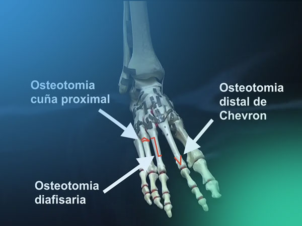 Conoce las diferentes osteotomías de ascenso proximal en las metatarsalgias tipo Rocker II (estáticas)