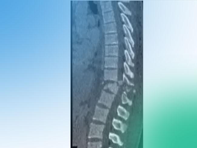 Descubre la clasificación de las fracturas vertebrales tóraco-lumbares